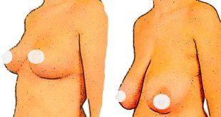 تمارين شد الثدي المترهل طبيعيا