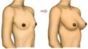 طريقة لتكبير الثدي الصغير جدا