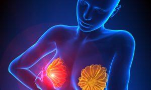 طرق مختلفة طبيعية لتكبير الصدر بطرق طبية